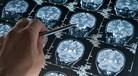 Descoberto mecanismo para evitar perda de memória na doença de Alzheimer