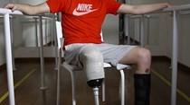 Chapecoense: Follmann sonha com Jogos Paralímpicos